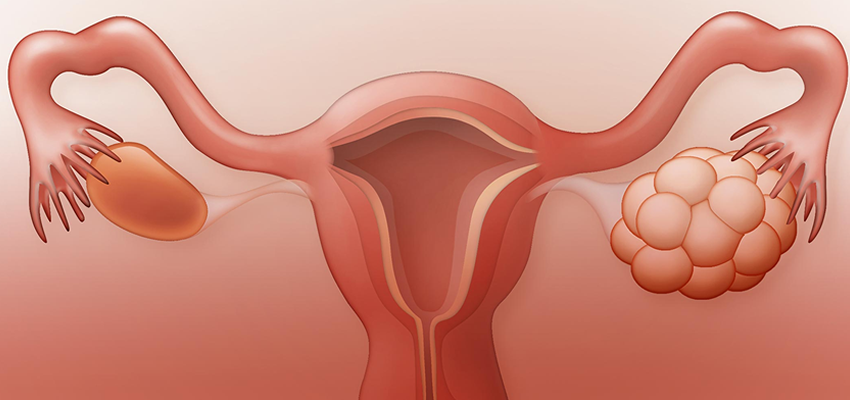 Increased number of polycystic ovary cases